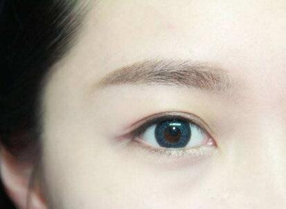 做双眼皮手术可以做一边可以吗