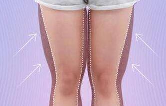 大腿吸脂手术是需要分多次进行吗