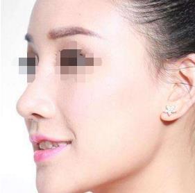 鼻小柱延长术的效果自然吗