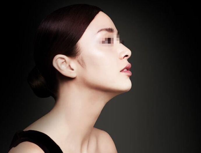西安晶肤鼻尖整形术的优势有多少点