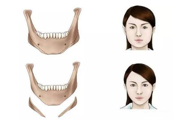 【精品解读】下颌角整形临床上比较常见的问题以及解答