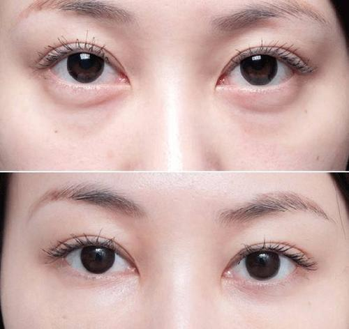 西安晶肤吸脂法祛眼袋的优点是什么