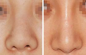 西安晶肤鼻小柱延长优势是什么
