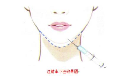 西安晶肤玻尿酸隆下巴是怎样的