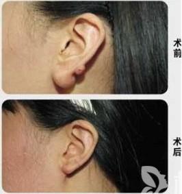 耳垂畸形修复手术的最佳时机是何时