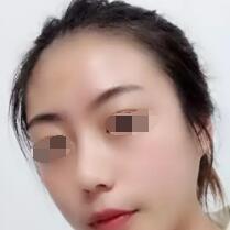 隆鼻案例,给我360°的美鼻