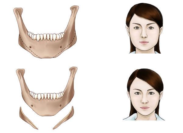安徽宿州下颌角整形价格35000-50000/例