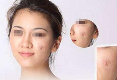 烟台洛神皮瓣移植的作用有哪些