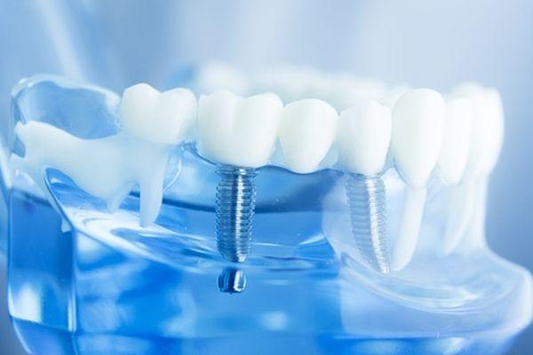 西安晶肤种植牙全过程