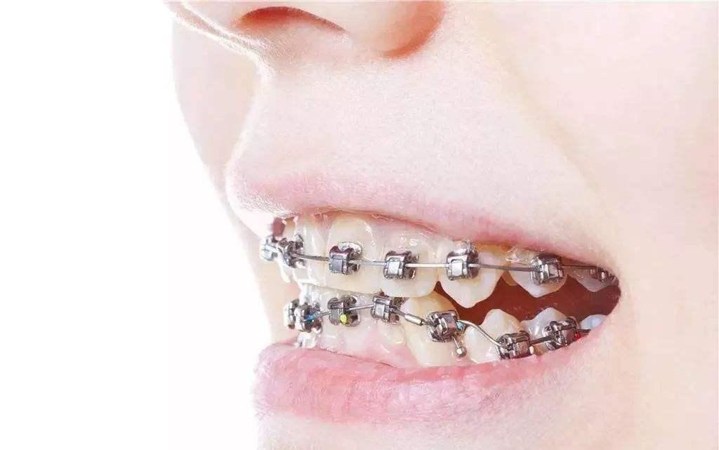 西安晶肤做牙齿矫正有年龄限制吗