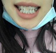牙齿矫正案例,整齐的牙齿舒服多了