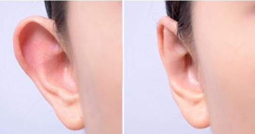 招风耳矫正过程是怎么样的