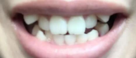 牙齿矫正,不知不觉牙齿已经变的很整齐啦