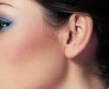 深圳军科杯状耳矫正一般维持多长时间
