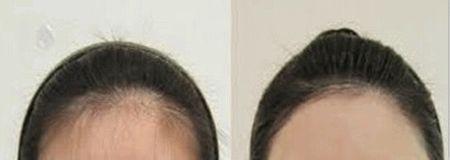 咸阳华尔激光发际线脱毛是安全的吗