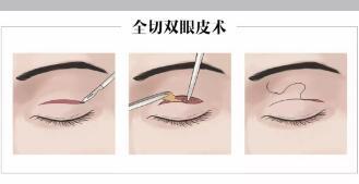 全切双眼皮手术肉条多久去除?