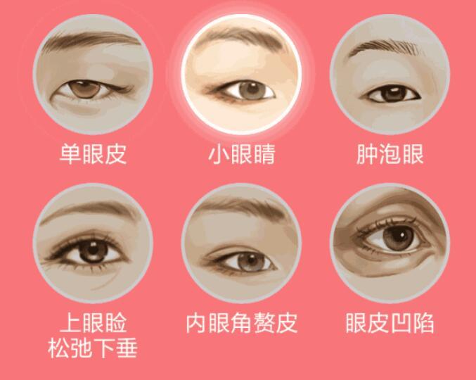 当你想去做双眼皮的时候,你要知道这三点