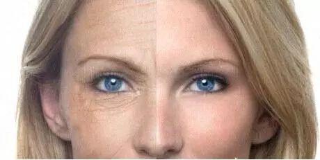 射频美容能不能改善皱纹