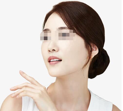 硅胶隆下巴让你拥有一个自然的漂亮脸型