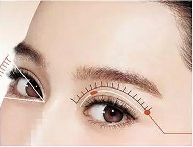 长沙美莱双眼皮修复疼吗