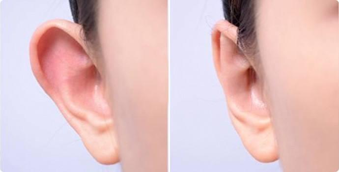咸阳华尔招风耳矫正的手术治疗整个过程是怎么样的