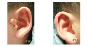 菏泽华美副耳切除术后还要修复