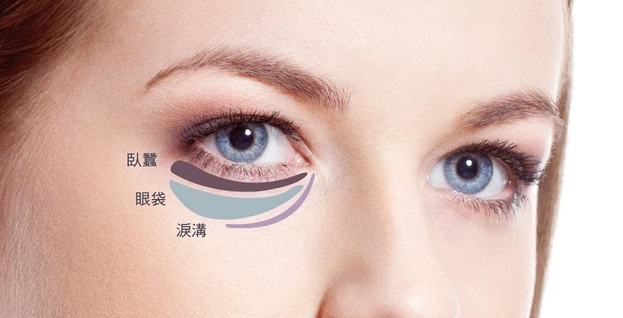 长沙美莱祛除眼袋术失败的修复方法