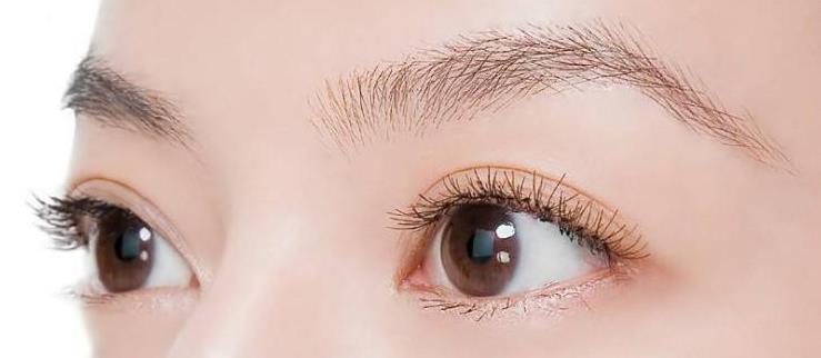 还在纠结怎么双眼皮手术怎么选