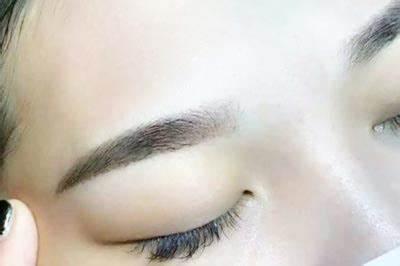 深圳军科眉毛种植的适应和禁忌群体分别有哪些