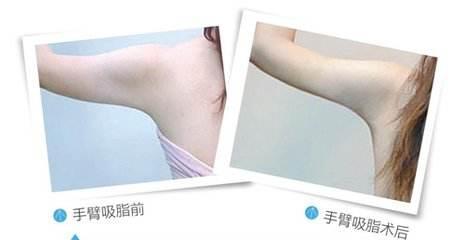 长沙美莱手臂吸脂减肥四大优势
