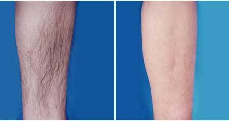 深圳军科激光脱腿毛的优势主要有哪些