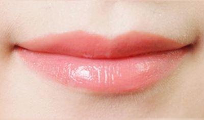 长沙美莱纹唇手术优点