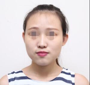 下颌角整形,终于不再被人说脸大了