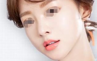 菏泽华美厚唇改薄术优点有什么