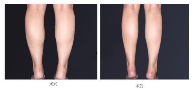 咸阳华尔吸脂瘦小腿优点是哪些