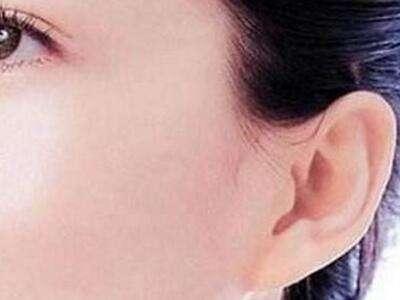 长沙美莱副耳切除的注意事项是什么