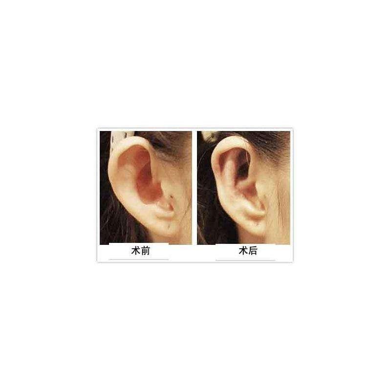 长沙美莱隐耳整形手术后的特点