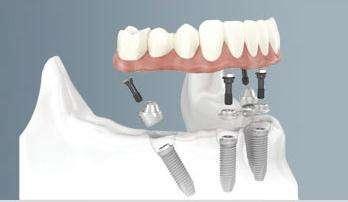 长沙美莱种植牙齿要多长时间