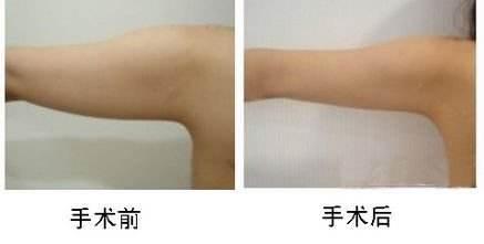 汉中卓美手臂吸脂手术的效果如何