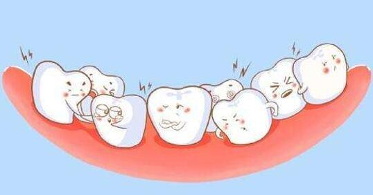 牙齿矫正前要做的这些检查