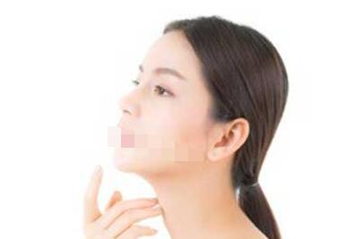 做下颌角整形手术要遵循哪些原则