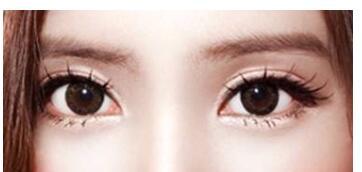 全切双眼皮手术会影响正常上班工作吗