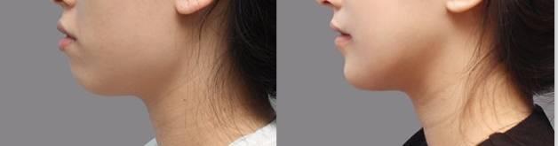 长沙亚韩假体隆下巴后效果自然吗