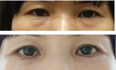 长沙亚韩内切祛眼袋手术怎么样