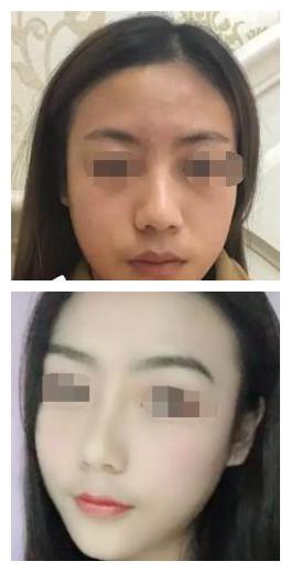 【名医解读】新疆整形医生孙琦的鼻部整形