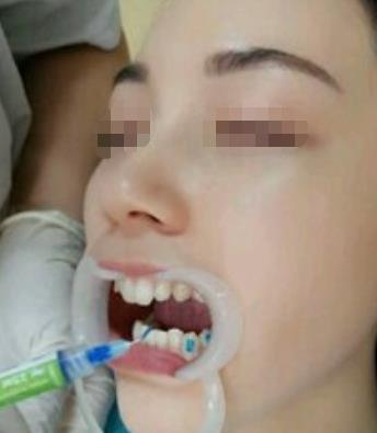 牙齿矫正,一口好牙让我笑容更自在了