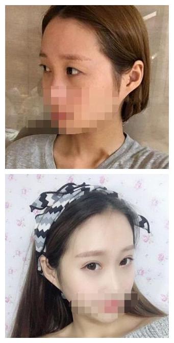【名医解读】南宁整形医生杨忠的眼部整形