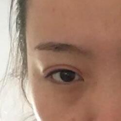 做了双眼皮之后眼睛变得超美
