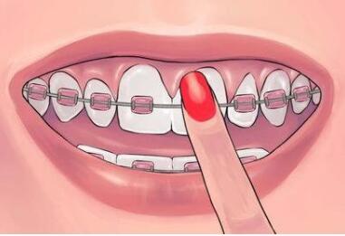 深圳曙光牙齿矫正的特点有哪些