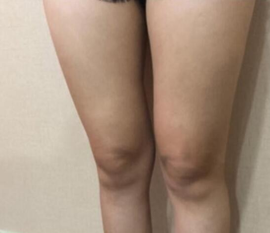 大腿吸脂后我的大腿变得很苗条了